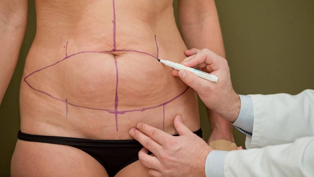 Wie man lose Haut nach dem Abnehmen strafft